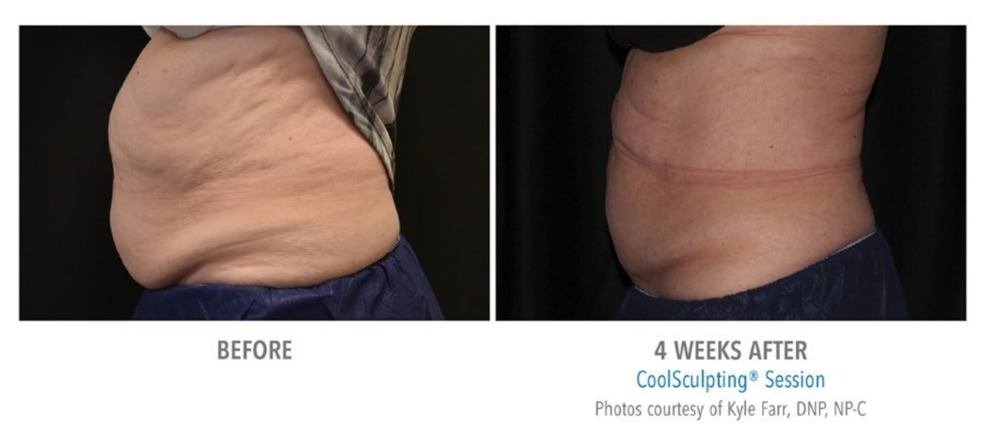 CoolSculpting Before and After   Real Patient Results   Sculptology